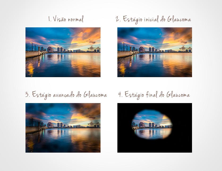 O-que-é-Glaucoma-002-thumb-blog
