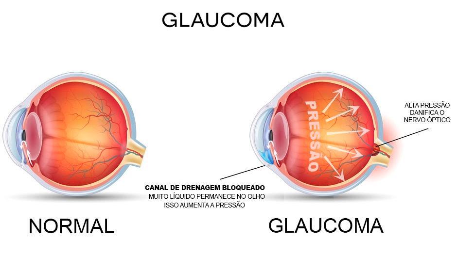 O-que-é-Glaucoma-004-thumb-blog