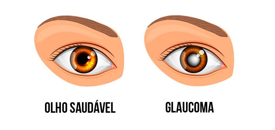 O-que-é-Glaucoma-005-thumb-blog