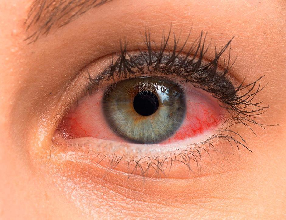 Cuidado-com-os-seus-olhos-no-Inverno-002-thumb-blog