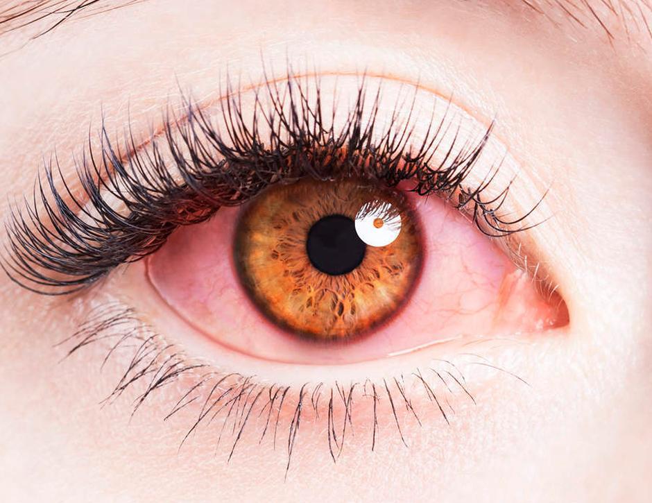 falta de oxigenação nos olhos