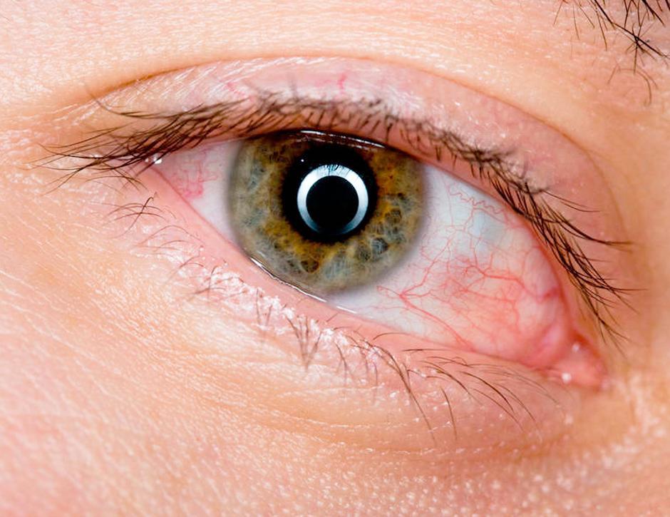 olhos irritados