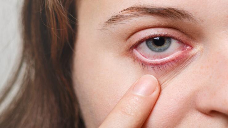 câncer no olho