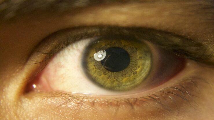 mapeamento de retina